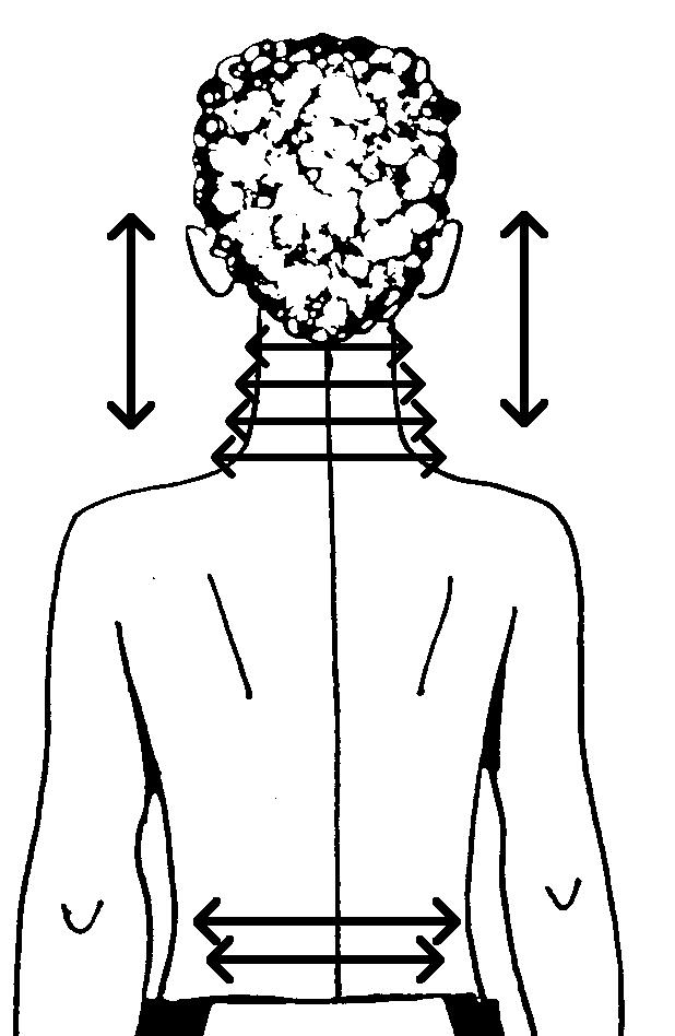Серебряные мостики при головокружении